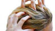 علاج حكة فروة الرأس والقشرة