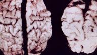 اضرار المخدرات على الجهاز العصبي