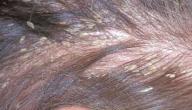 كيفية ازالة قشرة الشعر