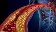 علاج زيادة الكولسترول