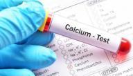 زيادة نسبة الكالسيوم في الدم