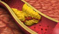 أسباب زيادة الكولسترول