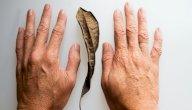 ما سبب ظهور بقع بنية خشنة على الجلد؟