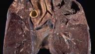 اعراض درن الغدد الليمفاوية
