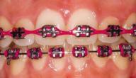 أفضل لون تقويم الأسنان للرجال