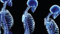 ضعف العظام