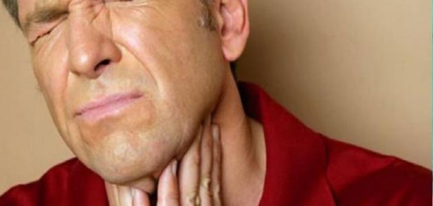 مرض التهاب اللوزتين