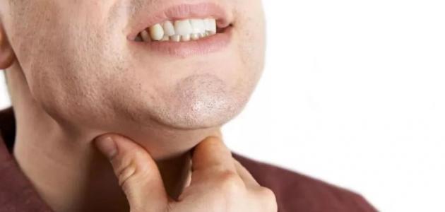 علاج التهاب الحلق واللوزتين