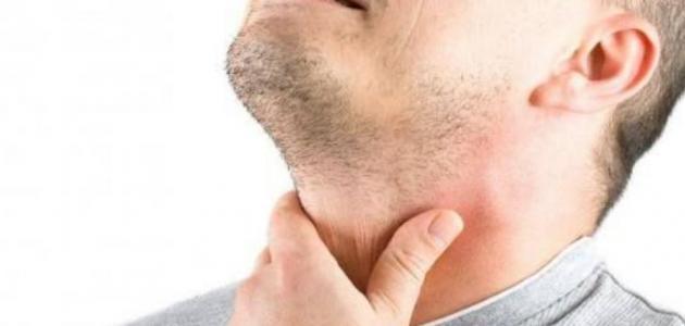أعراض قصور الغدة الدرقية وعلاجه