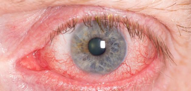 اصفرار العين والجسم