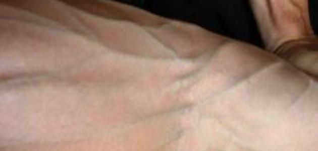 كيف تظهر عروق اليد