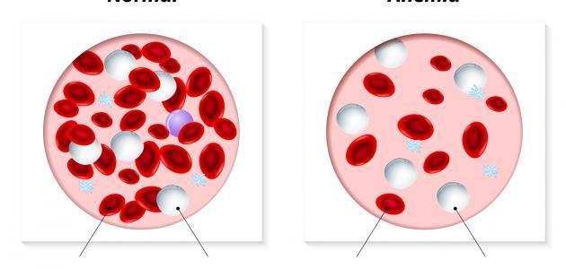 ما هي اسباب فقر الدم