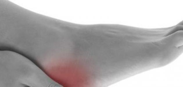 نقص الاملاح المعدنية في الجسم