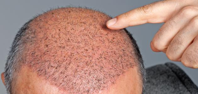 هل يجوز زراعة الشعر