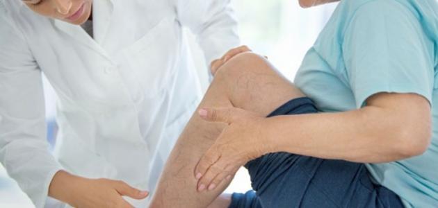 ماهو علاج دوالي الساقين