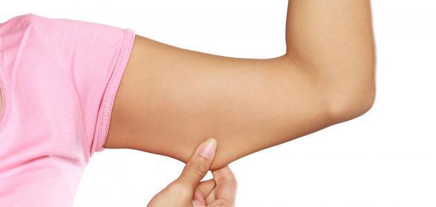 علاج ترهل الذراعين