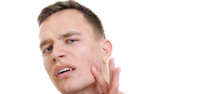 أعراض اضطراب الهرمونات