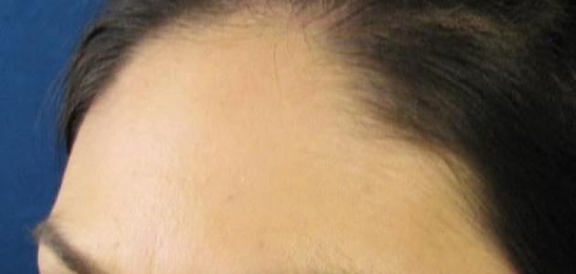 أفضل إبر لتساقط الشعر