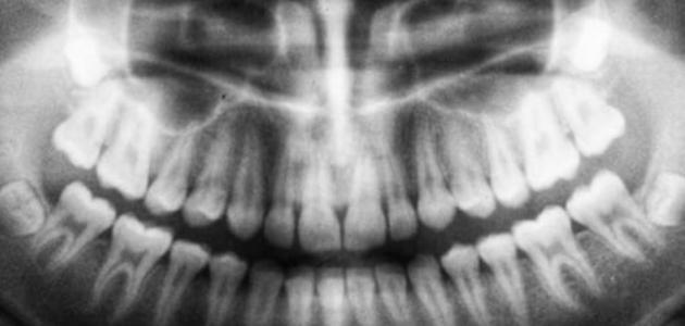 أضرار أشعة بانوراما للأسنان
