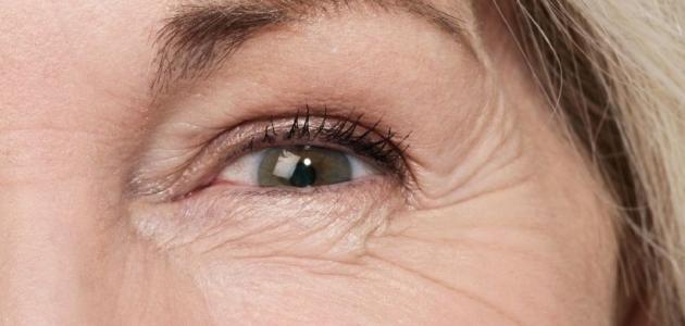 إزالة تجاعيد تحت العين طبيعيا