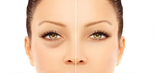 علاج انتفاخ جفن العين السفلي