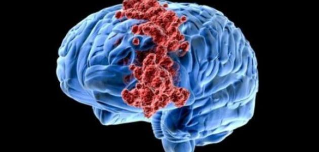 علامات سرطان الدماغ