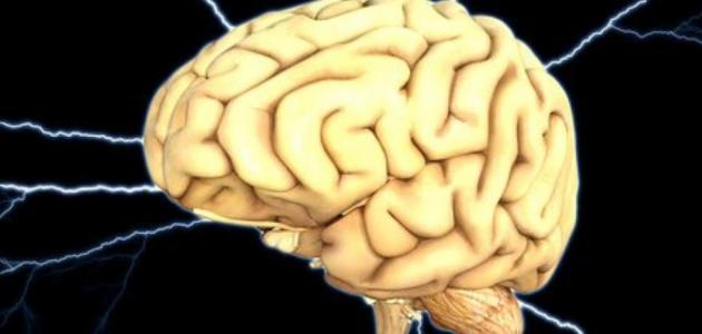 نقص التروية الدماغية