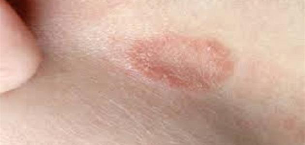 ظهور بقع حمراء على الجلد بدون حكة