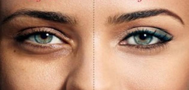 طريقة التخلص من الهالات السوداء تحت العينين