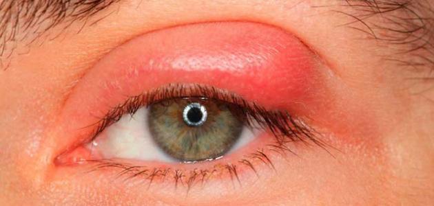 علاج حساسية جفن العين